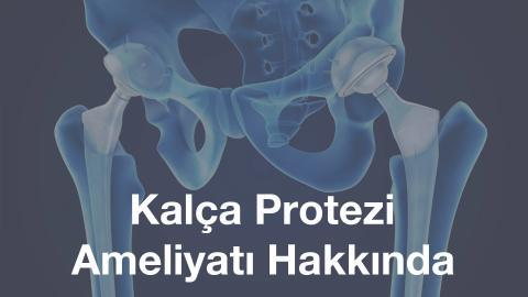 kalça protezi