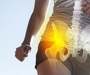 kalça kireçlenmesi prp tedavisi